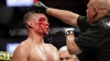 Masvidal dominates; fight called due to Diaz cut